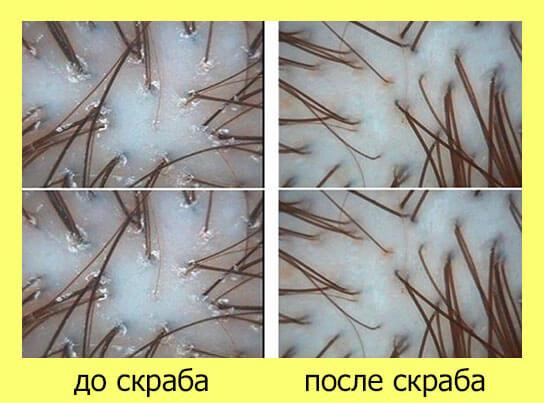 кожа головы до пилинга и после пилинга